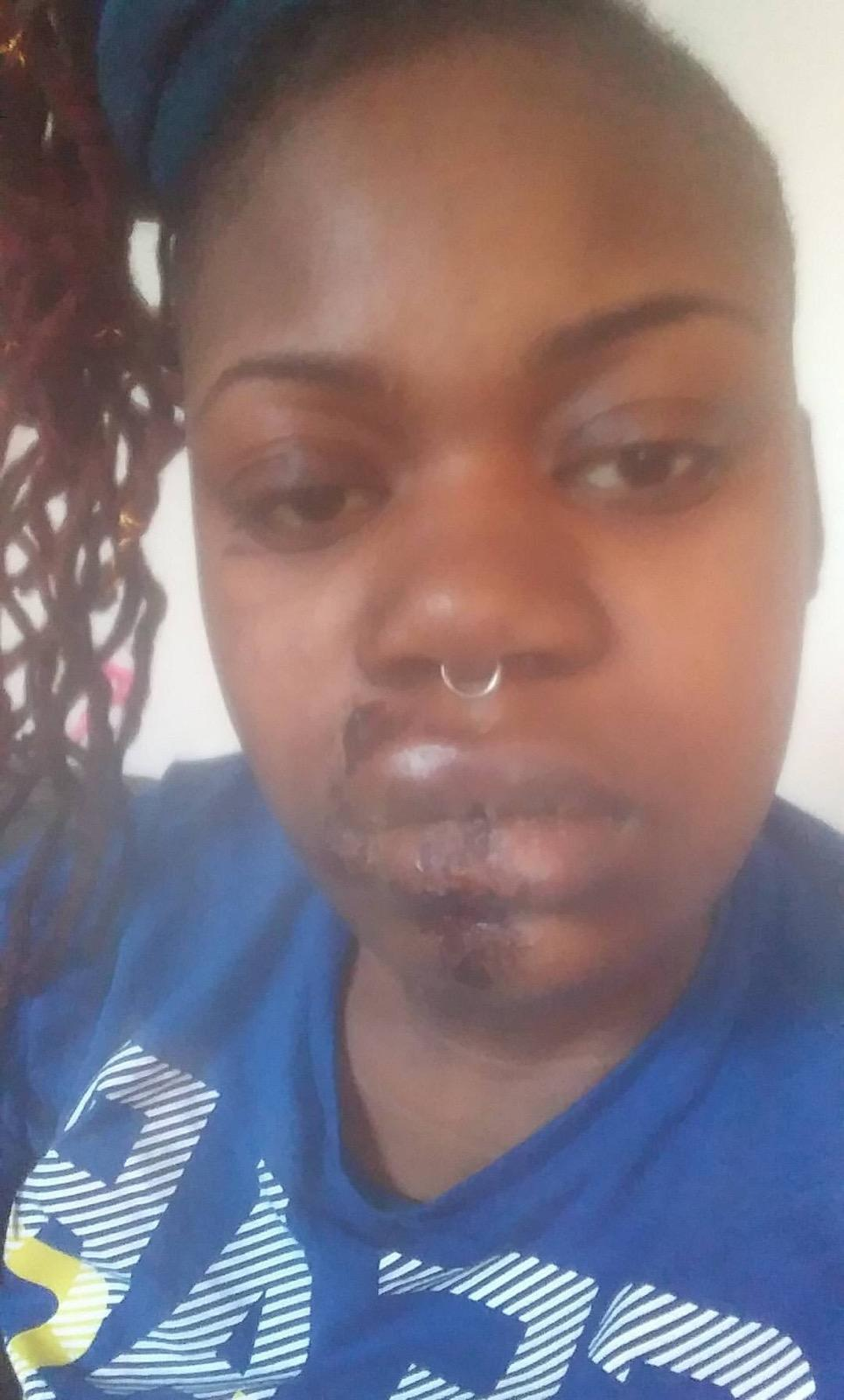 Attorney Yaida Ford Secures Settlement for Young Victim of Transit Police Attack
